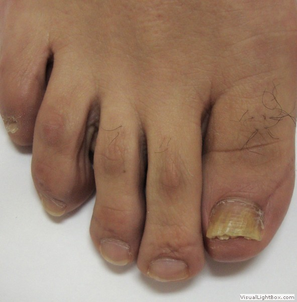 pictures of toenail and finger nail fungus  onychomycosis