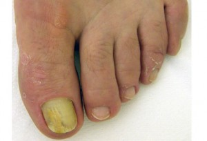 Big toe has bad nail fungus