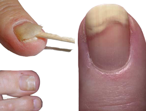 image of lifting nails - onycholysis