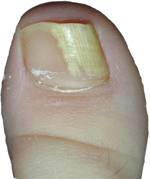 picture of white toenail with onychomycosis