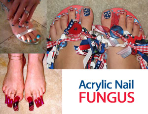 Covering fungus by artificial nails